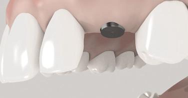 Implantat Schritt Zwei