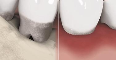 Parodontale Erkrankungen